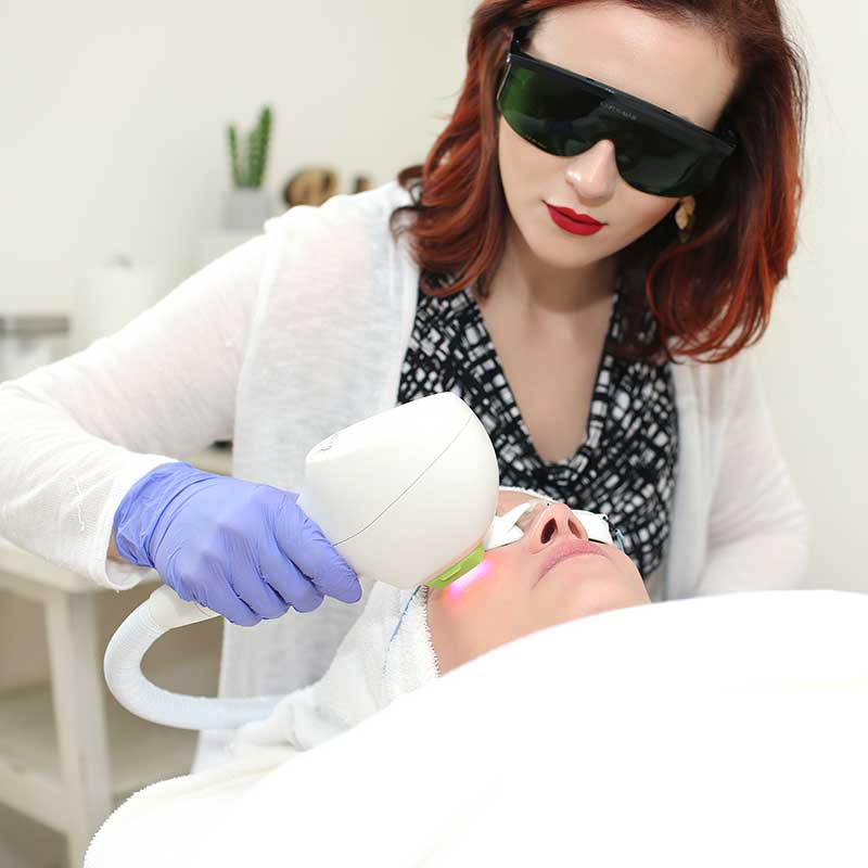 Specialist performs laser skin treatment on face